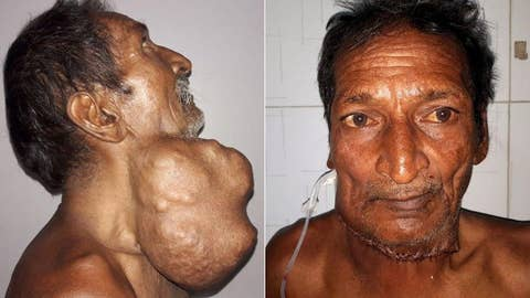 Man gets a 3-pound tumor removed from his neck