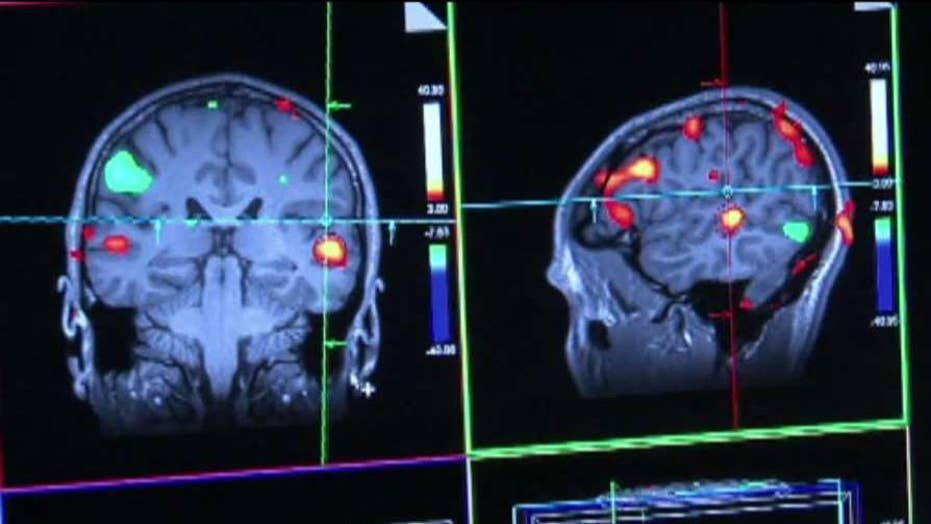 Drug shows promise in treating Alzheimer's