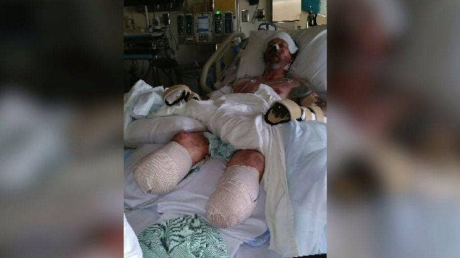 Man's limbs amputated after dog lick leads to severe infection