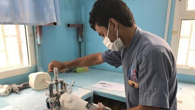 Yemen's civil war and the prosthetic limb industry
