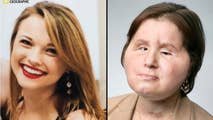 Katie Stubblefield received a face transplant after she attempted suicide by shooting herself in the face.