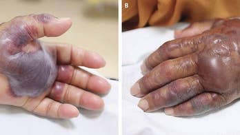 A 71-year-old South Korean man developed large blisters and a fever as a result of a bacterial infection caught from eating raw seafood in a sushi dish. 25 days after eating the meal, the man had to have his left hand and forearm amputated to stop the spread of rotting tissue.