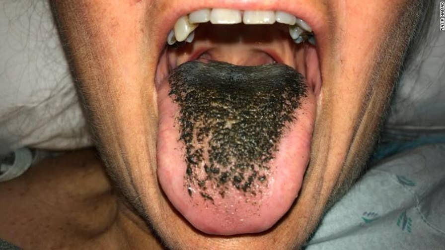 After receiving the antibiotic minocycline for injuries sustained in a car accident, a 55-year-old woman developed a black hairy tongue.