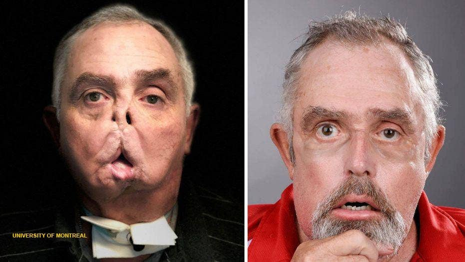 Canadian undergoes face transplant after tragic accident