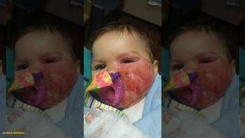Oklahoma infant suffers second-degree burns after pulling slow cooker off counter, mom says