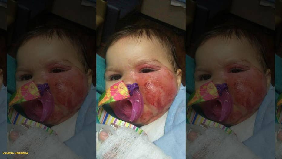 Infant suffers second-degree burns after pulling slow cooker off a counter