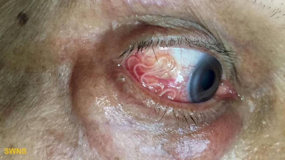 Must see: 15cm-long worm being removed from a man's eye