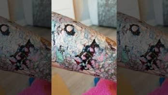 UK mom claims tattoo removal left her with horrific infection