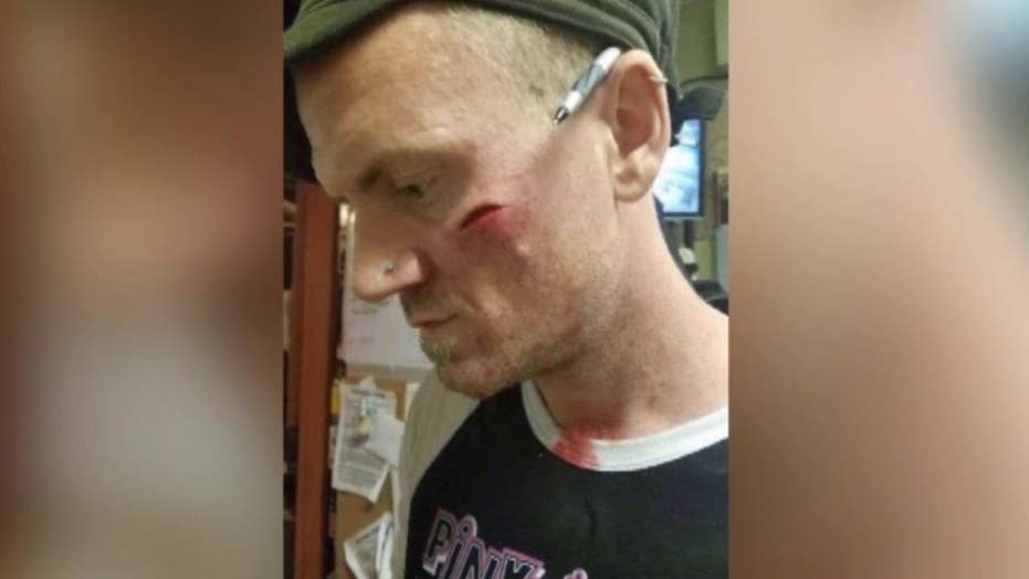 Bartender injured by glass thrown by unruly customers