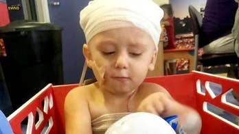 Toddler's scalp is partially ripped off after family friend runs over him