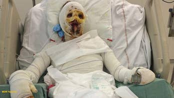 Allergic reaction to medication causes burns on 90% of woman's body