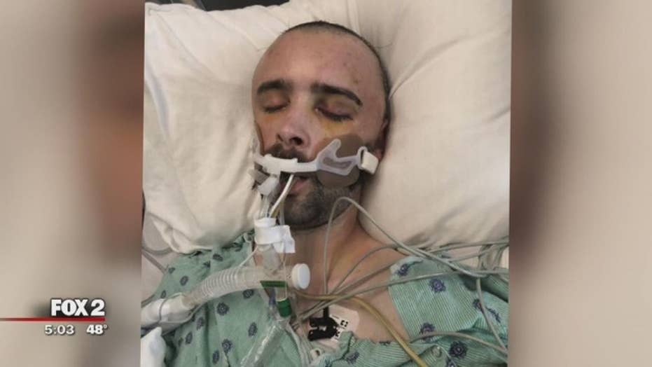 Man severely beaten while attending a bachelor party