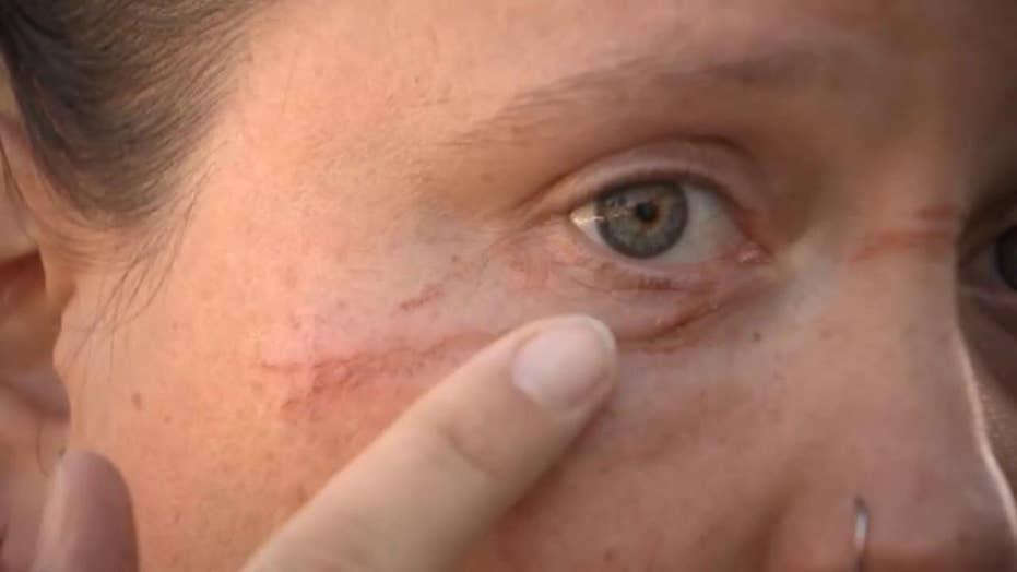 Portland cyclist injured in bike path booby trap