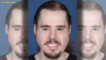 Face transplant recipient shows remarkable progress