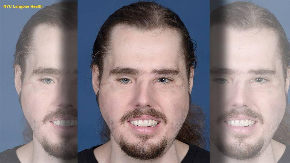 Face transplant recipient shows remarkable progress