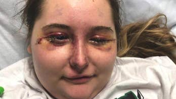 Teen permanently blinded as mystery illness causes severe swelling, bruised face