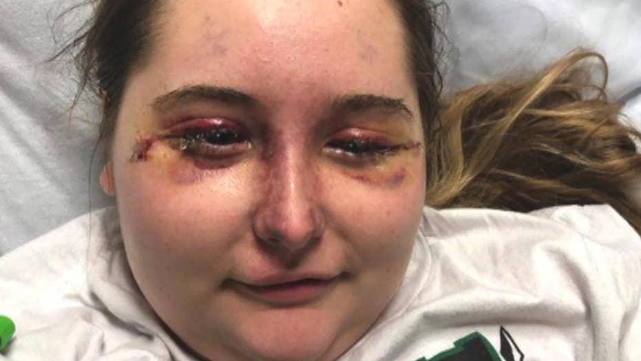 Missouri teen blinded by mystery illness