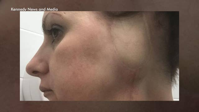 Mom blames tanning for losing ear to skin cancer
