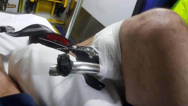 Man impaled by bike's handlebars says accident 'happened so fast'