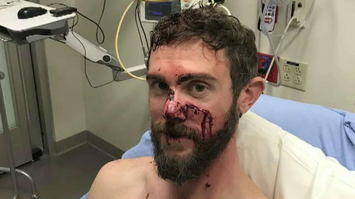 Colorado man speaks out about surviving mountain lion attack