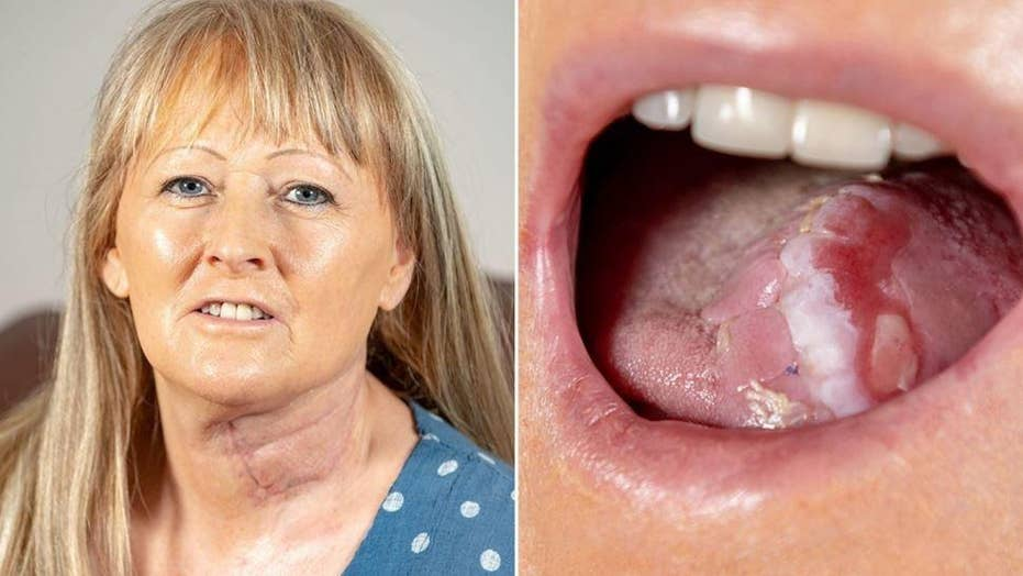 Report: 58-year-old Joanna Smith gets a new tongue made from a vein and pieces of her arm