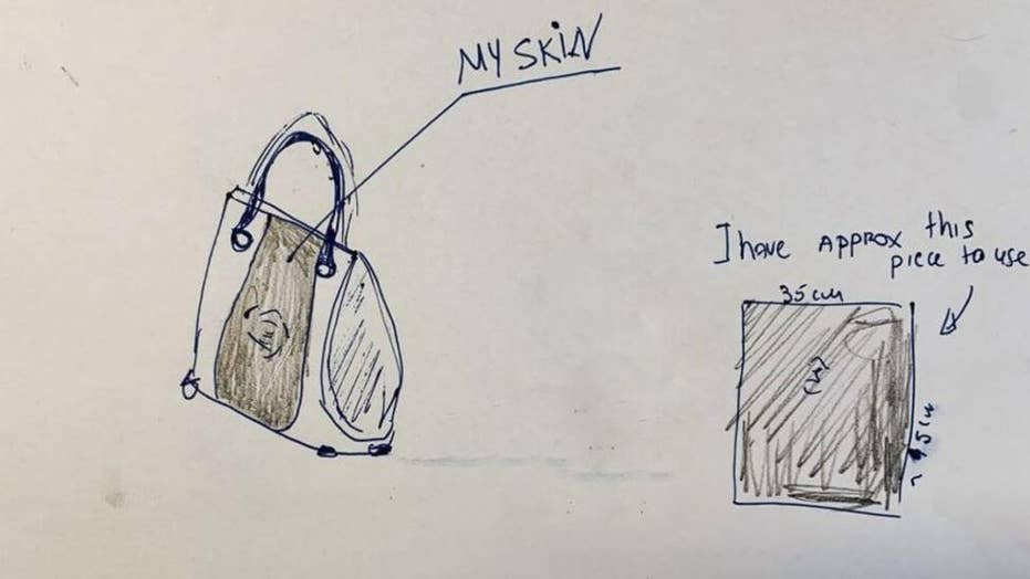 Woman searching for designer to use skin from her amputated leg to make her a purse