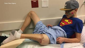 Teen's foot attached backward to form new knee after cancer surgery