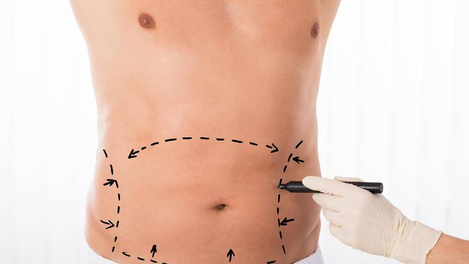 Study finds plastic surgery on the rise: Breast augmentation, liposuction among most popular procedures