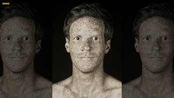 Portraits reveal 'invisible' skin imperfections caused by UV rays