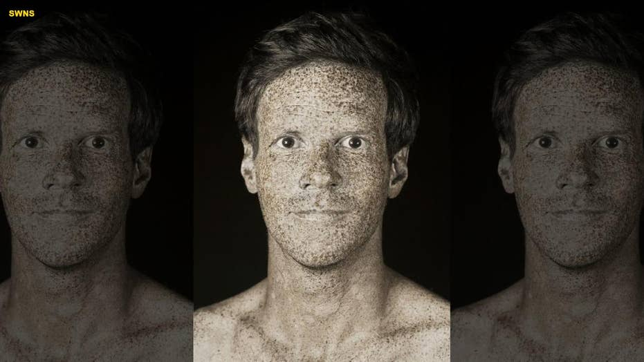 French photographer releases unique series of portraits that capture the real damage caused by UV rays