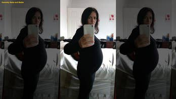 Woman's suspected 'baby bump' was actually massive ovarian tumors