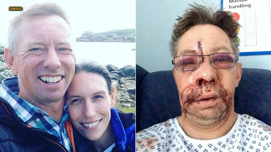 Surfing accident left man's face 'pushed in a bit' after smashing into paddle board