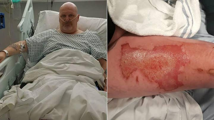 Vape pen allegedly explodes in man's pocket and leaves him with third-degree burns