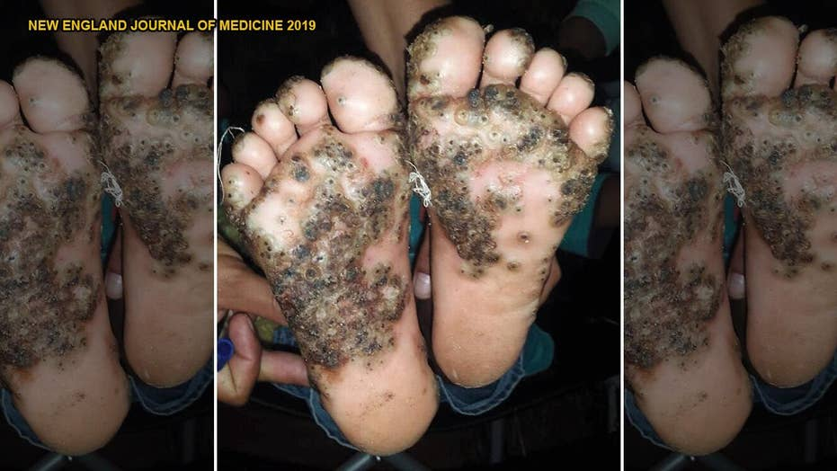 Girl's feet infested with parasitic fleas after running through pigsty barefoot