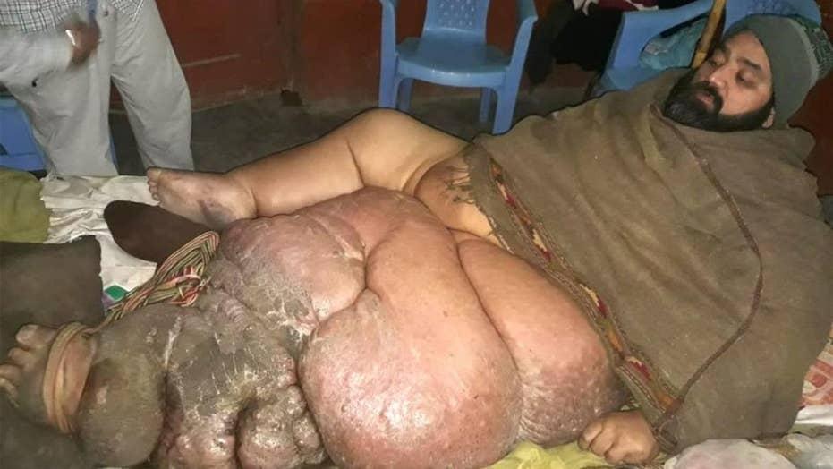 Pakistani butcher Muhammad Mushtaq is pleading for doctors to amputate his 330-pound leg