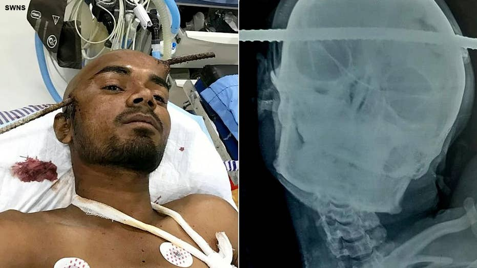 Construction worker survives after iron rod pierces through his head