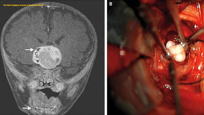 How an infant's tumor had fully formed teeth inside