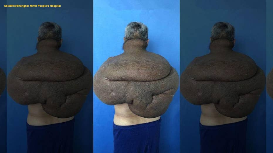 Man gets 61-pound tumor removed in 33-hour marathon surgery