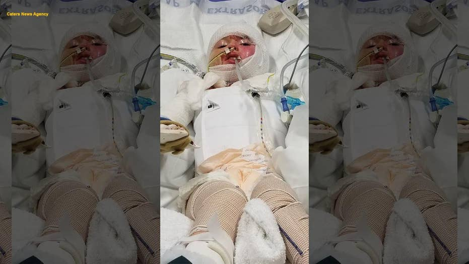 Little girl sustains horrific burns across 68 percent of her body after candle lit sofa on fire