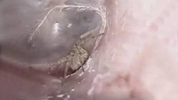 Spider was found spinning web in patient's ear