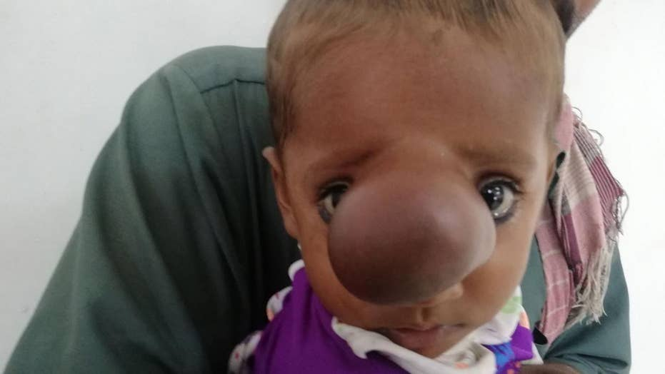 Infant born with brain sticking out of nose
