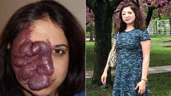 Life changing surgeries help nursing student remove 'port wine birthmark'