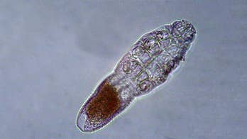 Face mites feast on skin oils while you sleep