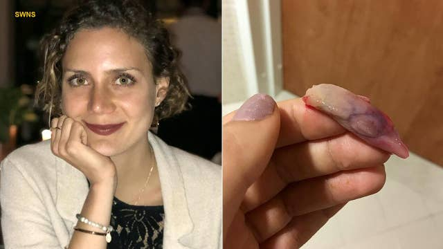 'Slug'-sized growths removed from nose of woman suffering from breathing issues