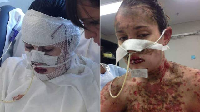 Woman 'burnt from inside out' after severe reaction to medication pregnant with 'miracle' baby