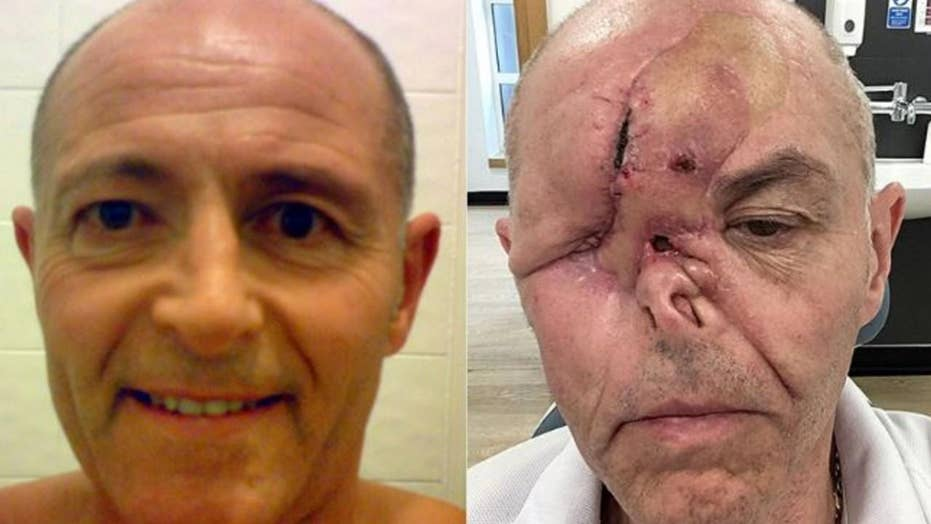 Cancer causes dad to lose eye, but not sense of humor