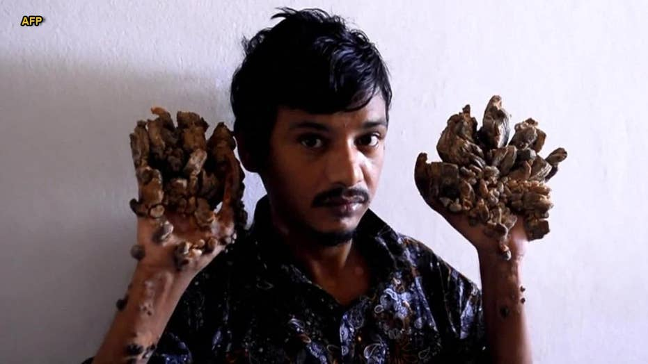'Tree Man' begs for hands to be amputated to relieve pain: Report