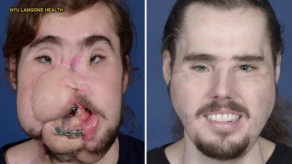 Face transplant helps suicide victim get his life back