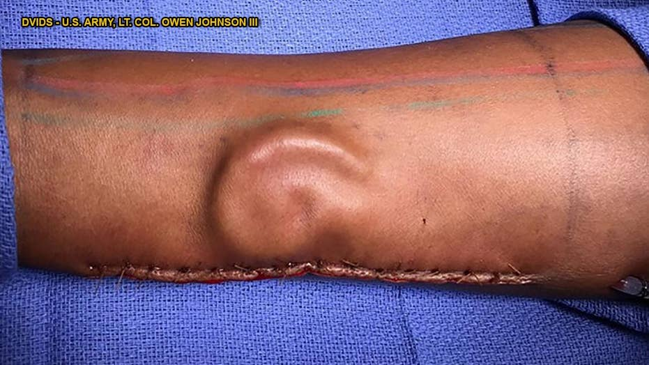 Doctors 'grow' soldier's replacement ear on her arm
