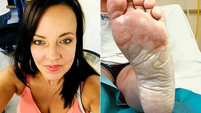 Mom suffers severe foot burns after stepping on sand under 'cold' disposable barbecue